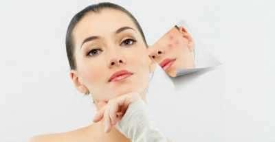 Anti-Acne Medicine Range